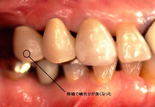 ishoku-s-3.jpg